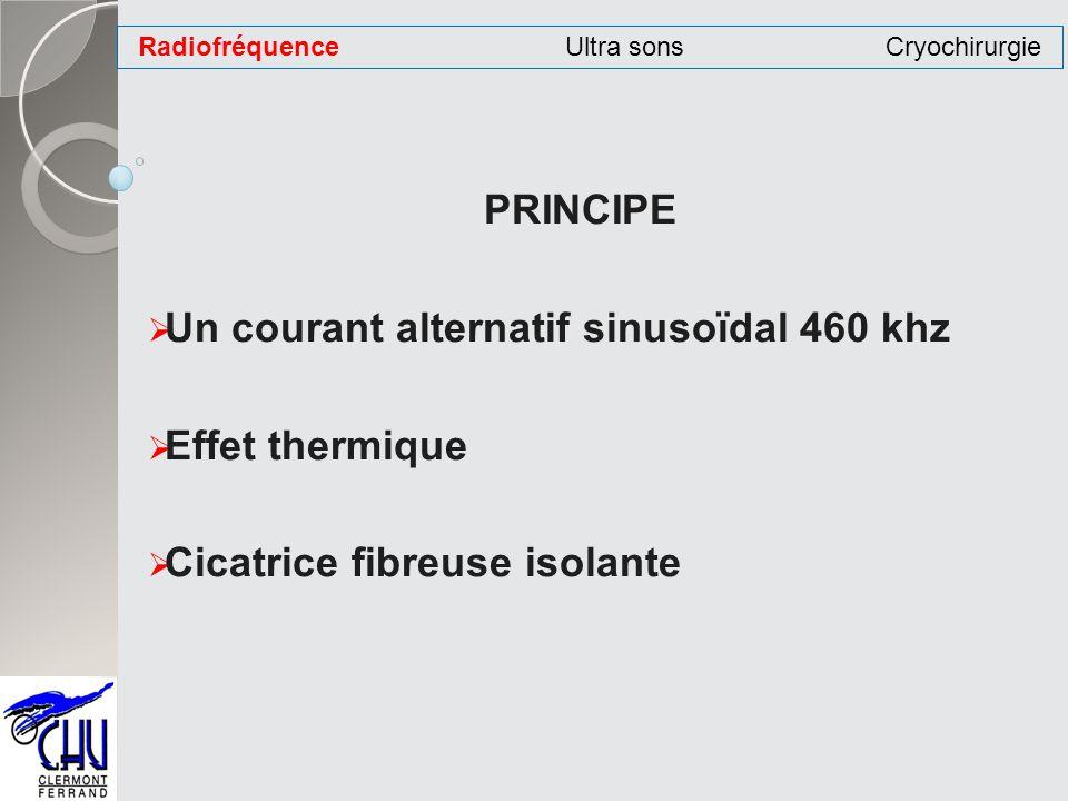 PRINCIPE Un courant alternatif sinusoïdal 460 khz Effet thermique Cicatrice fibreuse isolante RadiofréquenceUltra sonsCryochirurgie
