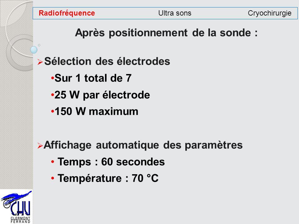 Après positionnement de la sonde : Sélection des électrodes Sur 1 total de 7 25 W par électrode 150 W maximum Affichage automatique des paramètres Tem