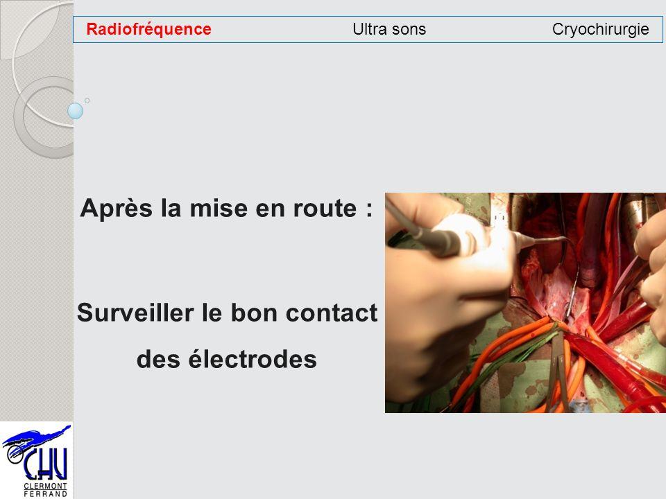 Après la mise en route : Surveiller le bon contact des électrodes RadiofréquenceUltra sonsCryochirurgie