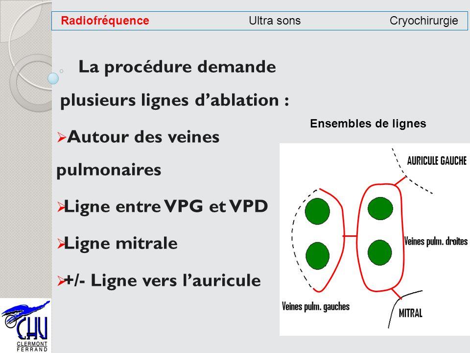 La procédure demande plusieurs lignes dablation : Autour des veines pulmonaires Ligne entre VPG et VPD Ligne mitrale +/- Ligne vers lauricule Radiofré