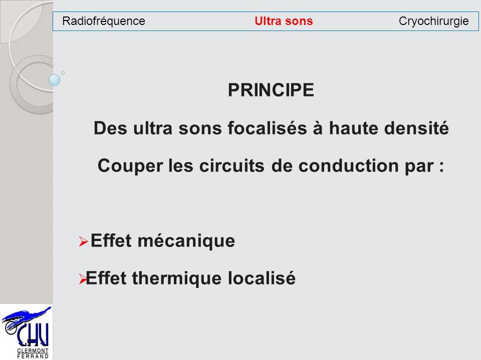 PRINCIPE Des ultra sons focalisés à haute densité Couper les circuits de conduction par : Effet mécanique Effet thermique localisé RadiofréquenceUltra