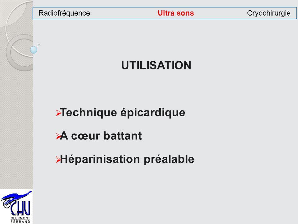 UTILISATION Technique épicardique A cœur battant Héparinisation préalable RadiofréquenceUltra sonsCryochirurgie