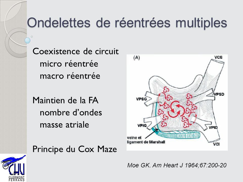 Ondelettes de réentrées multiples Coexistence de circuit micro réentrée macro réentrée Maintien de la FA nombre dondes masse atriale Principe du Cox M
