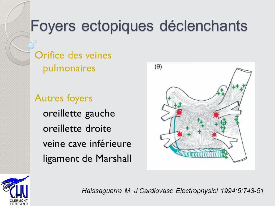 Foyers ectopiques déclenchants Orifice des veines pulmonaires Autres foyers oreillette gauche oreillette droite veine cave inférieure ligament de Mars