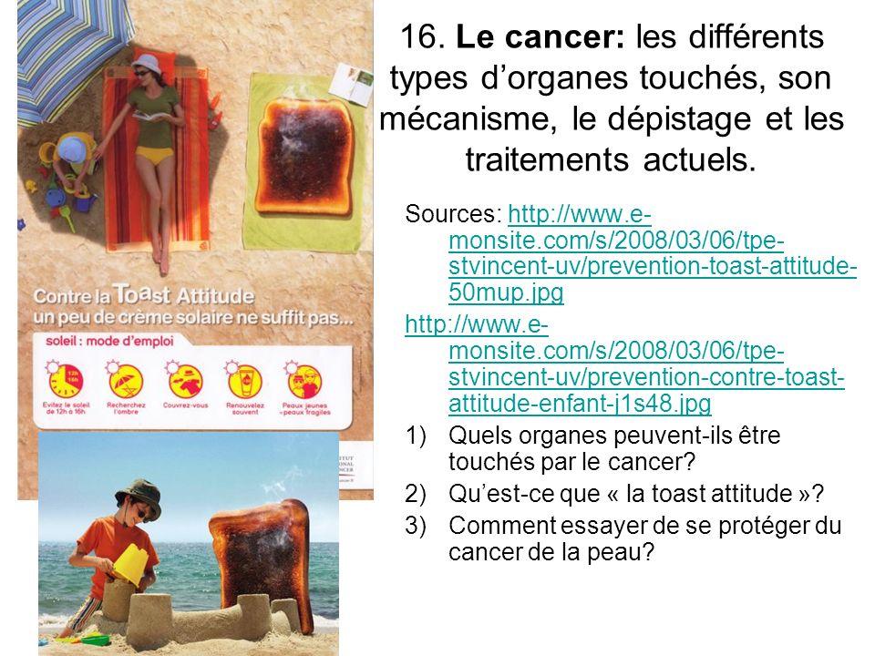 16. Le cancer: les différents types dorganes touchés, son mécanisme, le dépistage et les traitements actuels. Sources: http://www.e- monsite.com/s/200