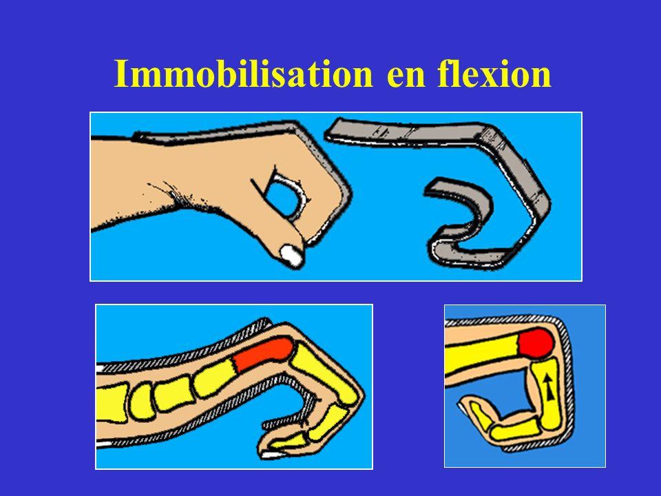 Immobilisation en flexion