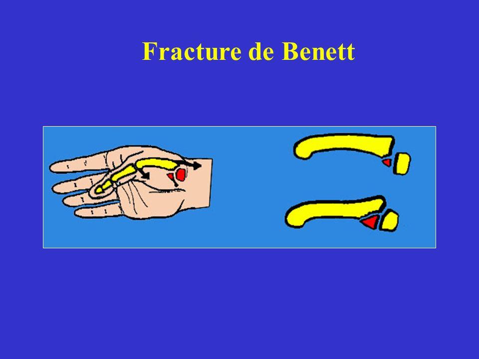 Fracture de Benett