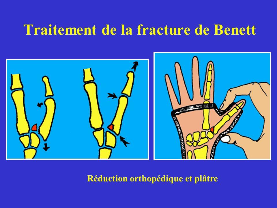 Traitement de la fracture de Benett Réduction orthopédique et plâtre