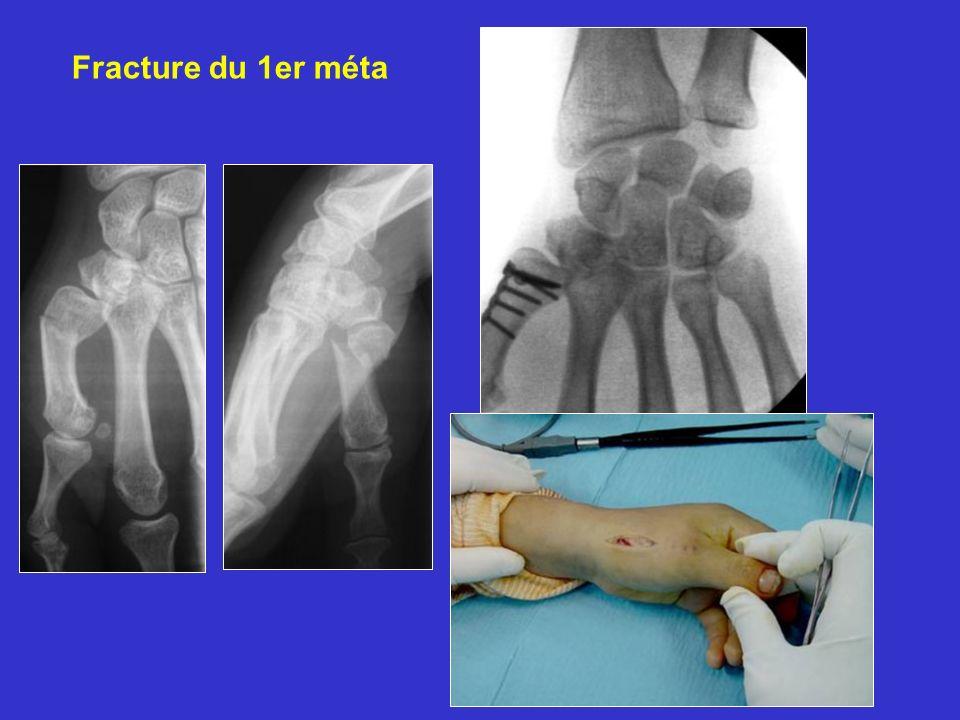 Fracture du 1er méta