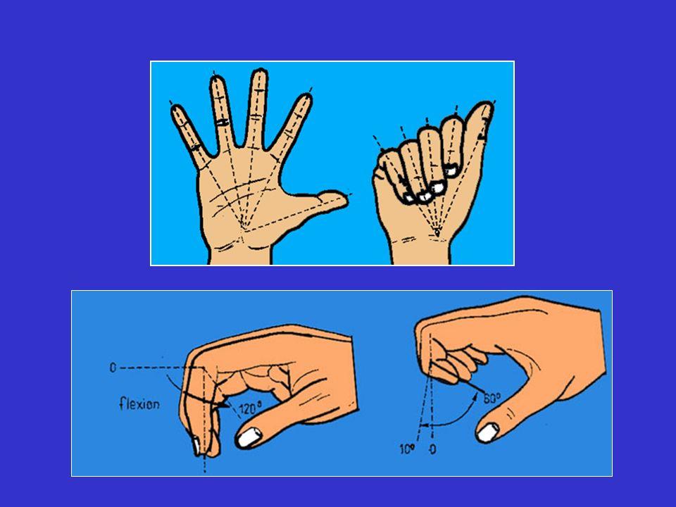 Les phlegmons des gaines synoviales : anatomie gaines des fléchisseurs - 2 gaines digito- carpiennes (I et V) --> douleur au pli flexion poignet - 3 gaines digitales (II, III, IV) --> douleur base du doigt / tête méta