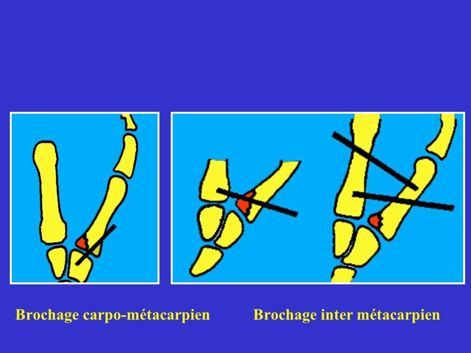 Brochage carpo-métacarpien Brochage inter métacarpien