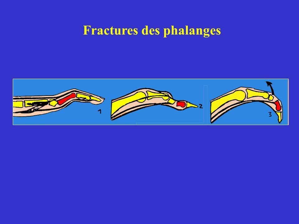 Fractures des phalanges