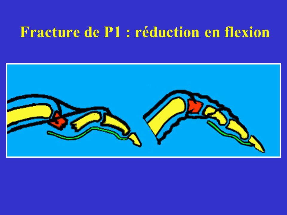 Fracture de P1 : réduction en flexion