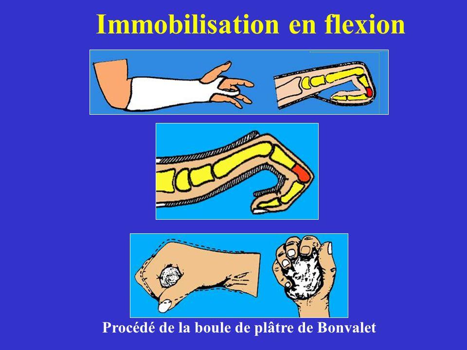 Immobilisation en flexion Procédé de la boule de plâtre de Bonvalet