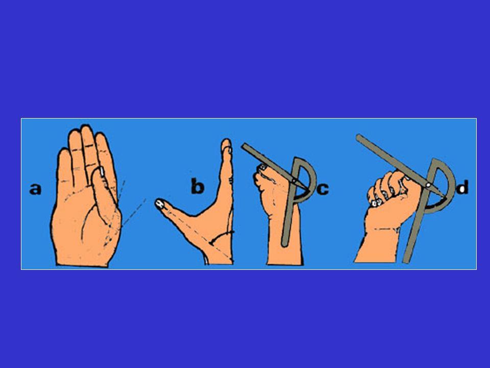 Diagnostic Phlegmon gaine débutant : douleur spontanée augmentée à la pression du cul de sac supérieur rechercher la porte dentrée (piqûre ou panaris, arthrite) et signes régionaux ou généraux NB : douleur au cul de sac proximal + porte dentrée (même piqûre minime ) = phlegmon débutant