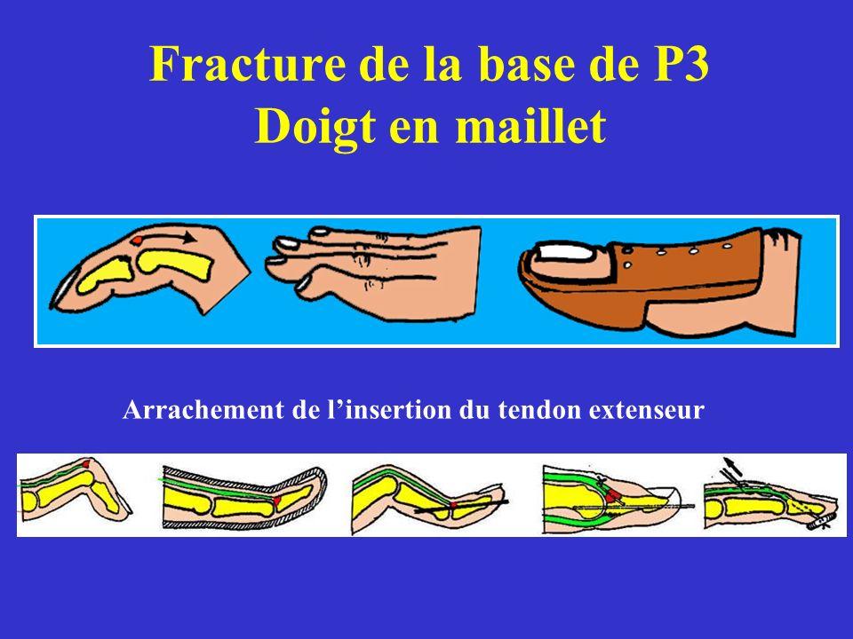 Fracture de la base de P3 Doigt en maillet Arrachement de linsertion du tendon extenseur