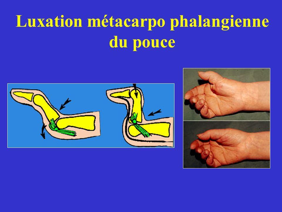 Luxation métacarpo phalangienne du pouce
