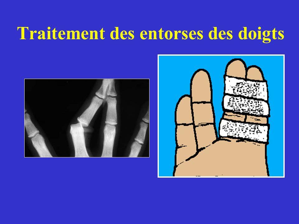 Traitement des entorses des doigts