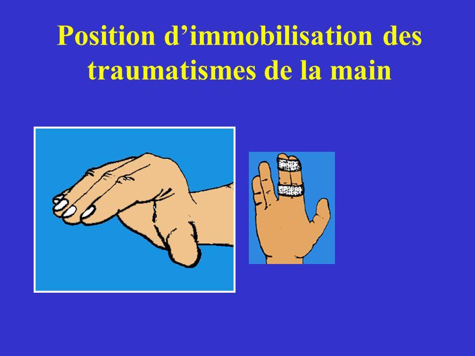 Position dimmobilisation des traumatismes de la main