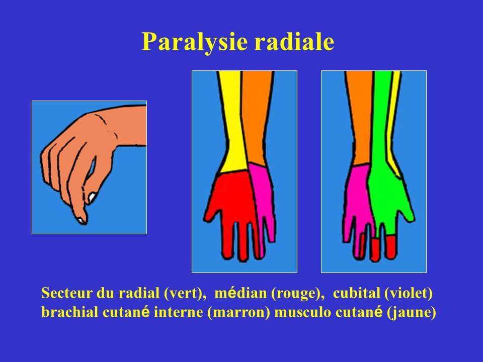 Paralysie radiale Secteur du radial (vert), m é dian (rouge), cubital (violet) brachial cutan é interne (marron) musculo cutan é (jaune)