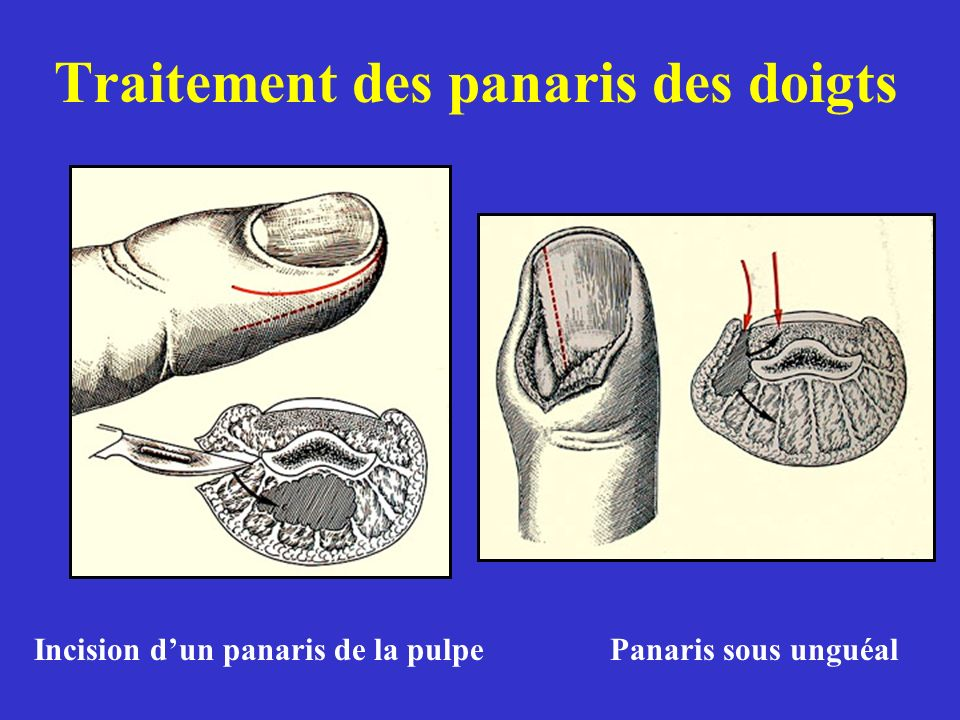 Traitement des panaris des doigts Incision dun panaris de la pulpePanaris sous unguéal