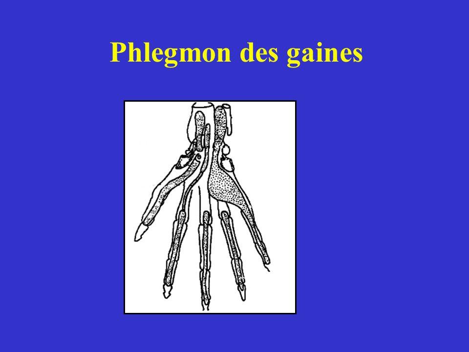 Phlegmon des gaines