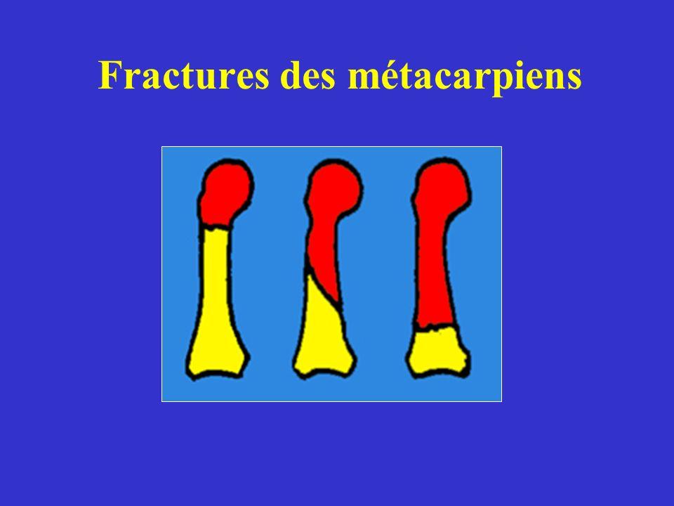 Fractures des métacarpiens