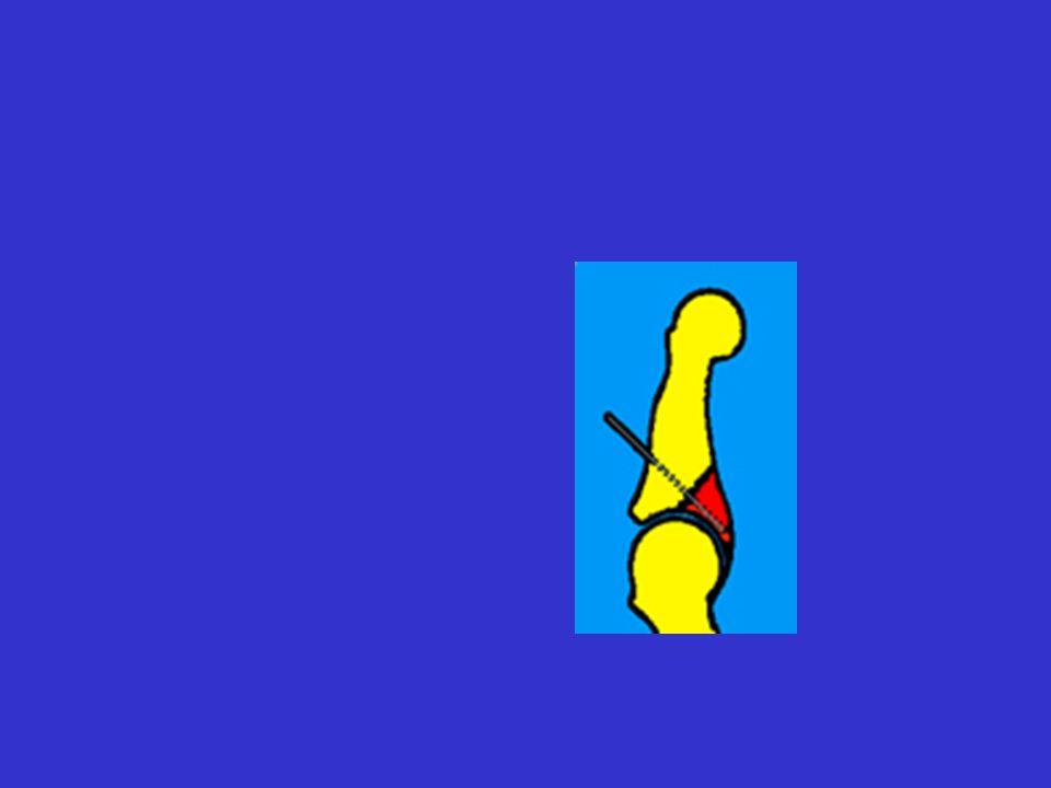 Traitement des Panaris (1) : stade inflammatoire : - surveillance pour porter à temps lindication opératoire dès que collecté stade collecté = traitement chirurgical –hospitalisation + bilan pré-op – intervention au bloc opératoire sous anesthésie (générale ou plexique mais pas dALRIV) –garrot sans bande dEsmarch