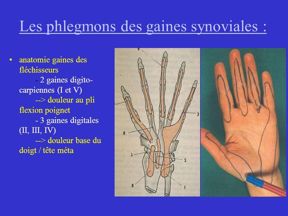 Les phlegmons des gaines synoviales : anatomie gaines des fléchisseurs - 2 gaines digito- carpiennes (I et V) --> douleur au pli flexion poignet - 3 g