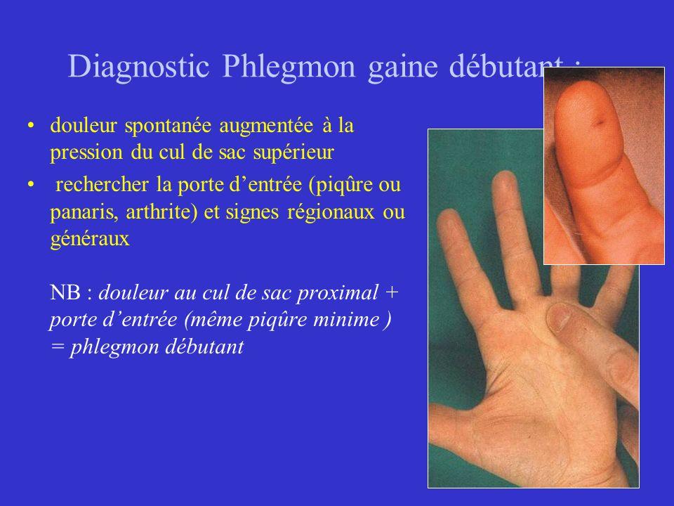 Diagnostic Phlegmon gaine débutant : douleur spontanée augmentée à la pression du cul de sac supérieur rechercher la porte dentrée (piqûre ou panaris,