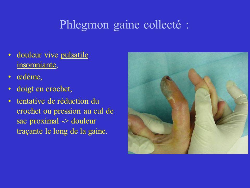Phlegmon gaine collecté : douleur vive pulsatile insomniante, œdème, doigt en crochet, tentative de réduction du crochet ou pression au cul de sac pro