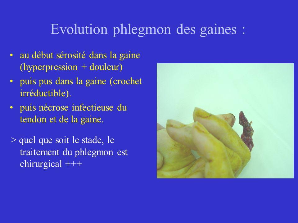 Evolution phlegmon des gaines : au début sérosité dans la gaine (hyperpression + douleur) puis pus dans la gaine (crochet irréductible). puis nécrose