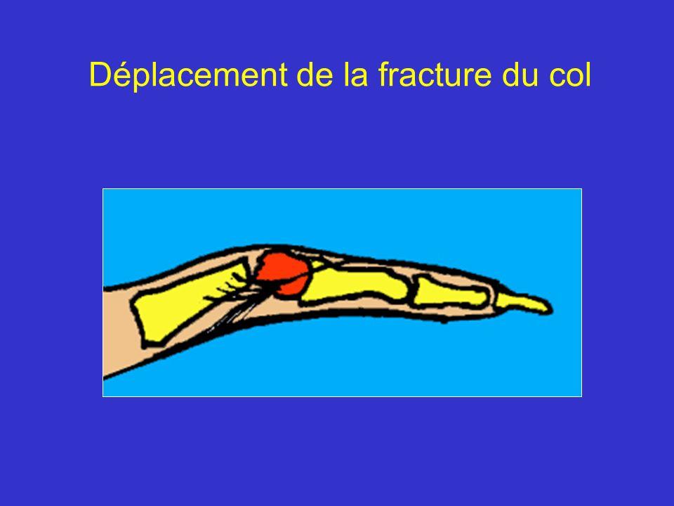 Fracture du col