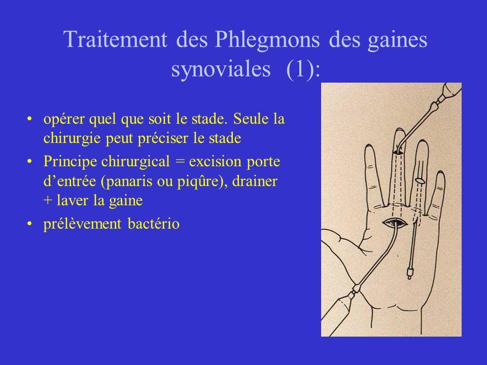 Traitement des Phlegmons des gaines synoviales (1): opérer quel que soit le stade. Seule la chirurgie peut préciser le stade Principe chirurgical = ex