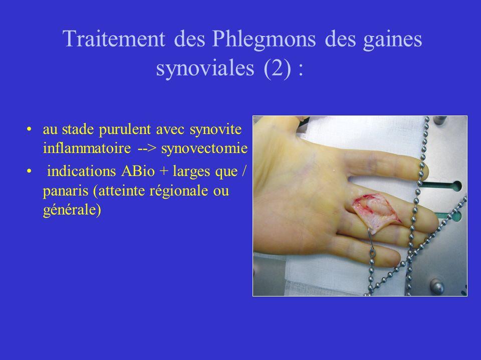 Traitement des Phlegmons des gaines synoviales (2) : au stade purulent avec synovite inflammatoire --> synovectomie indications ABio + larges que / pa