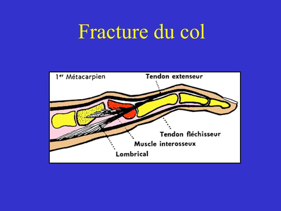 Rappels Panaris = infections des parties molles de la main ou des doigts Phlegmon = Infection qui se développe dans un espace anatomique de la main ou des doigts : - Espaces celluleux de la main - Gaines synoviales tendineuses