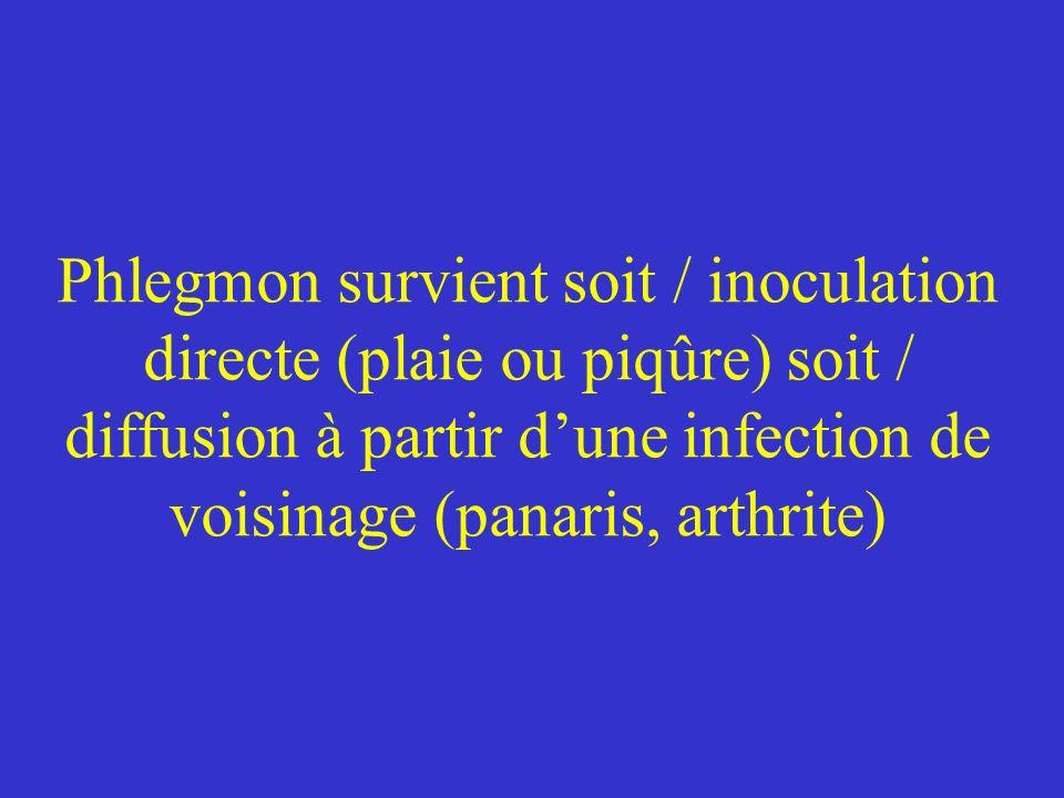 Phlegmon survient soit / inoculation directe (plaie ou piqûre) soit / diffusion à partir dune infection de voisinage (panaris, arthrite)