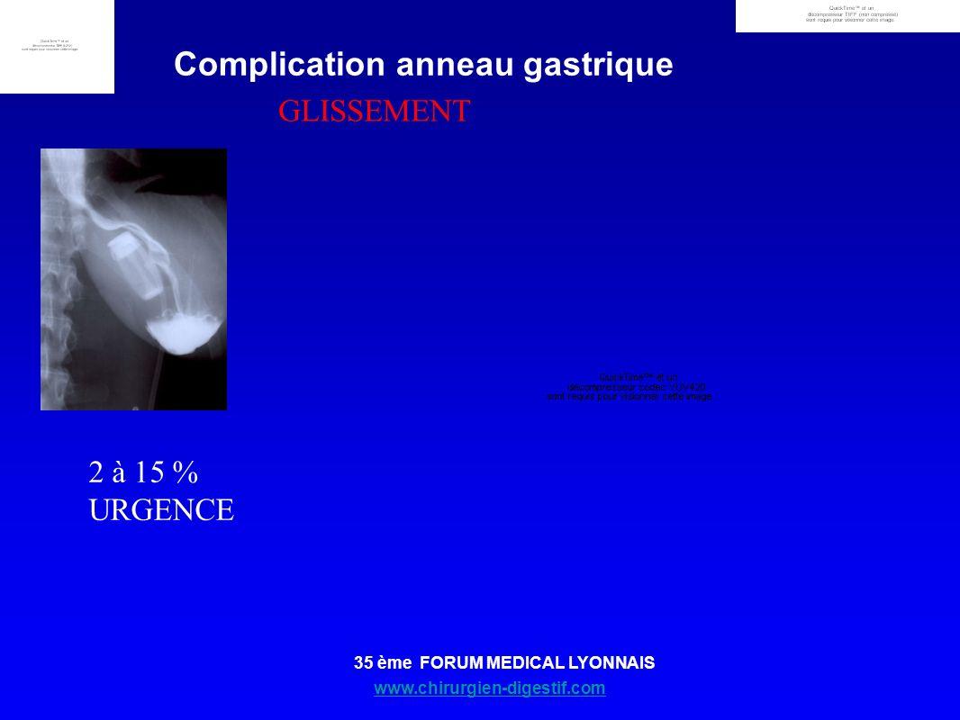 www.chirurgien-digestif.com 35 ème FORUM MEDICAL LYONNAIS Complication anneau gastrique GLISSEMENT 2 à 15 % URGENCE