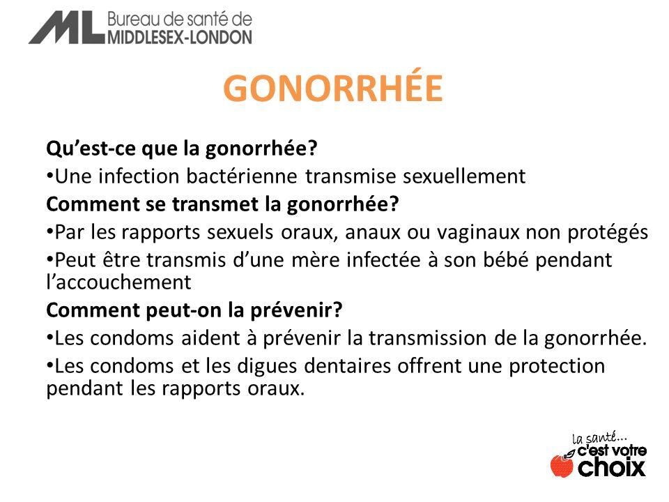 GONORRHÉE Quest-ce que la gonorrhée.