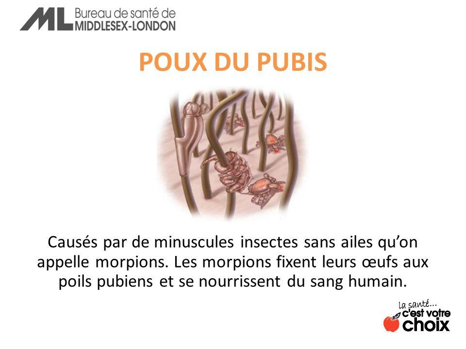 POUX DU PUBIS Causés par de minuscules insectes sans ailes quon appelle morpions.