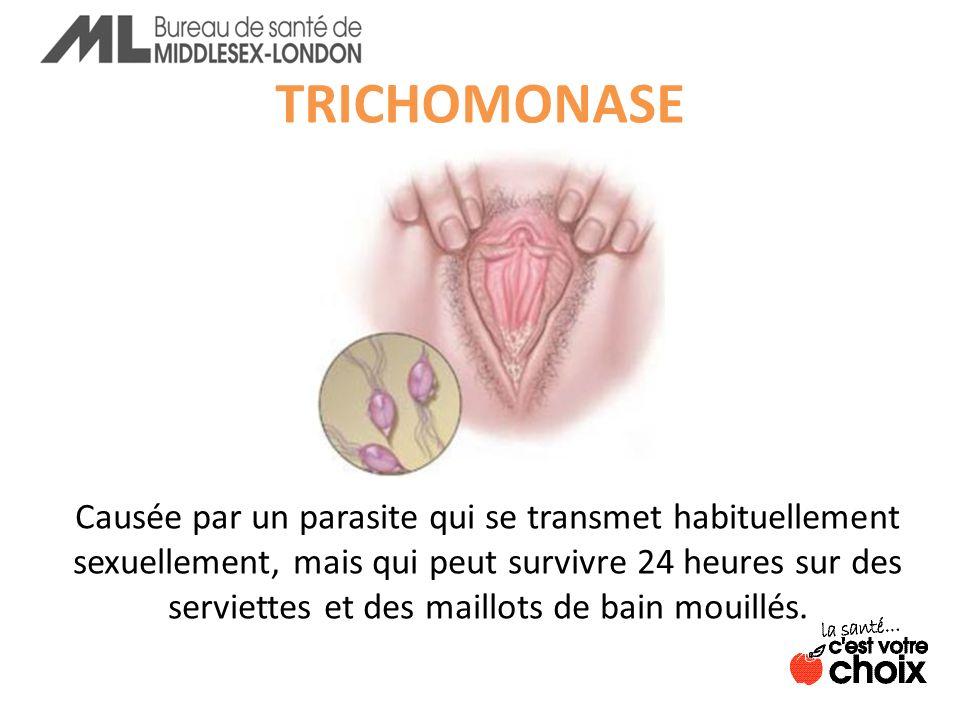 TRICHOMONASE Causée par un parasite qui se transmet habituellement sexuellement, mais qui peut survivre 24 heures sur des serviettes et des maillots de bain mouillés.