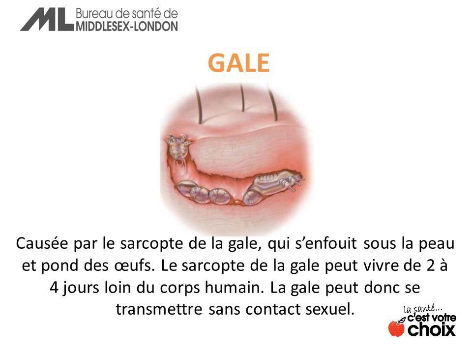 GALE Causée par le sarcopte de la gale, qui senfouit sous la peau et pond des œufs.