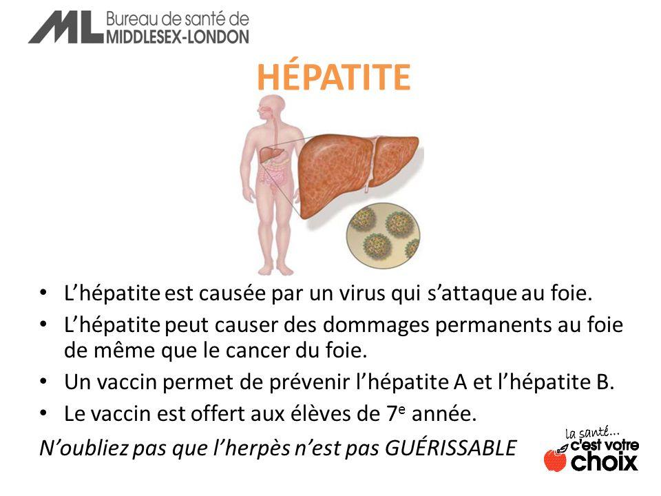 HÉPATITE Lhépatite est causée par un virus qui sattaque au foie.