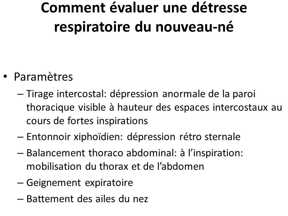 Comment évaluer une détresse respiratoire du nouveau-né Paramètres – Tirage intercostal: dépression anormale de la paroi thoracique visible à hauteur
