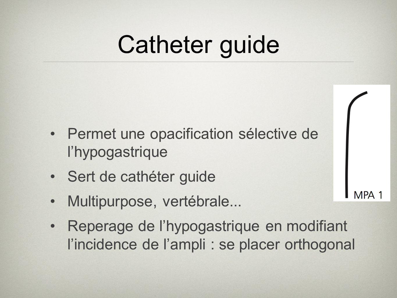 Catheter guide Permet une opacification sélective de lhypogastrique Sert de cathéter guide Multipurpose, vertébrale... Reperage de lhypogastrique en m