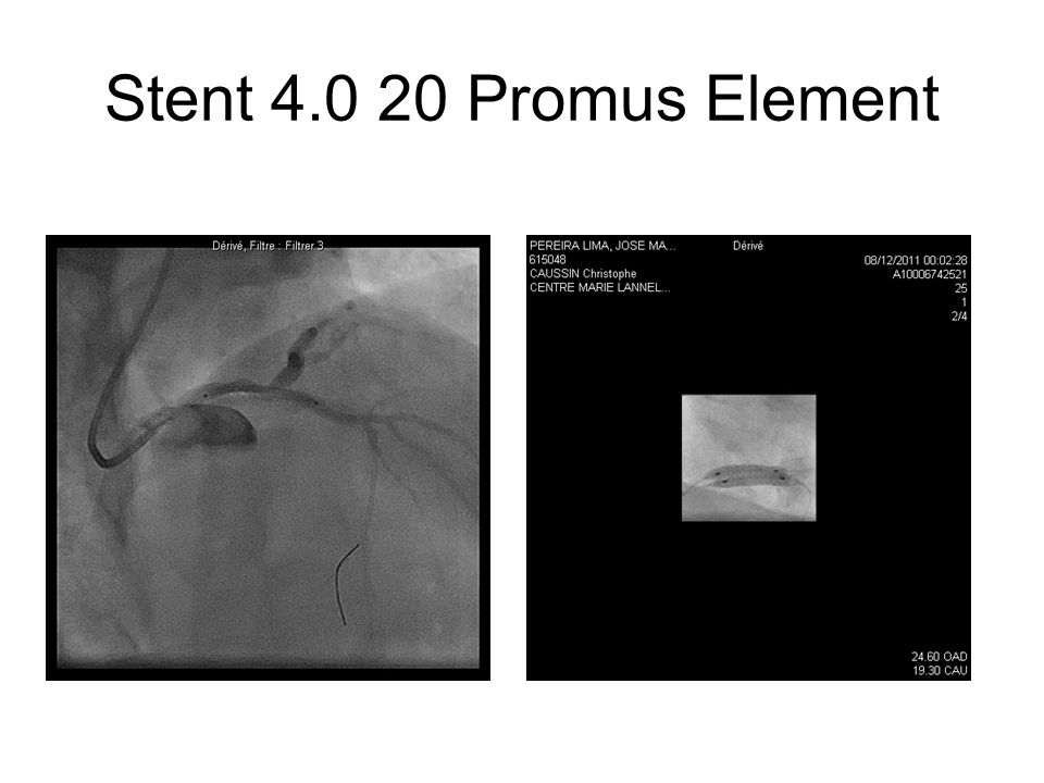 Stent 4.0 20 Promus Element
