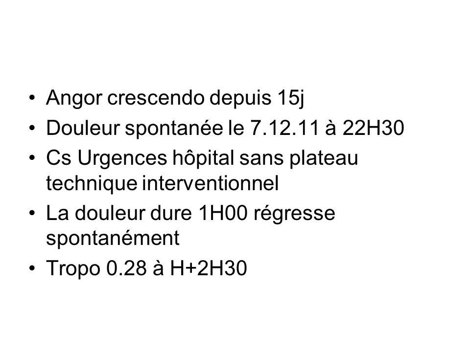 Angor crescendo depuis 15j Douleur spontanée le 7.12.11 à 22H30 Cs Urgences hôpital sans plateau technique interventionnel La douleur dure 1H00 régres