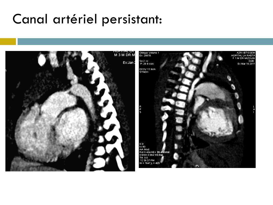 Canal artériel persistant: