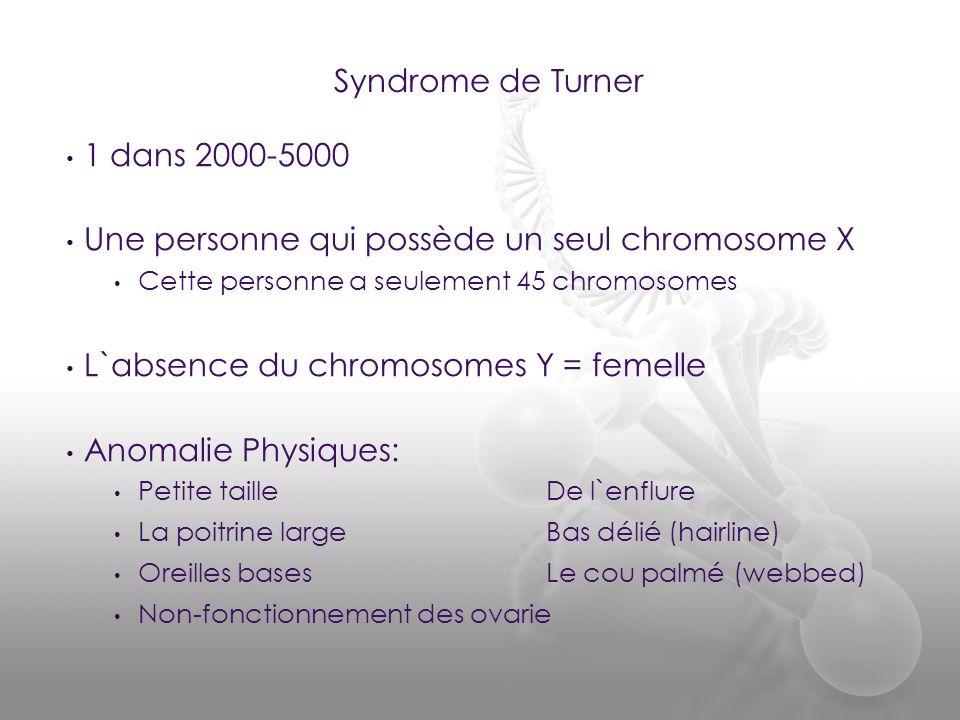 1 dans 2000-5000 Une personne qui possède un seul chromosome X Cette personne a seulement 45 chromosomes L`absence du chromosomes Y = femelle Anomalie