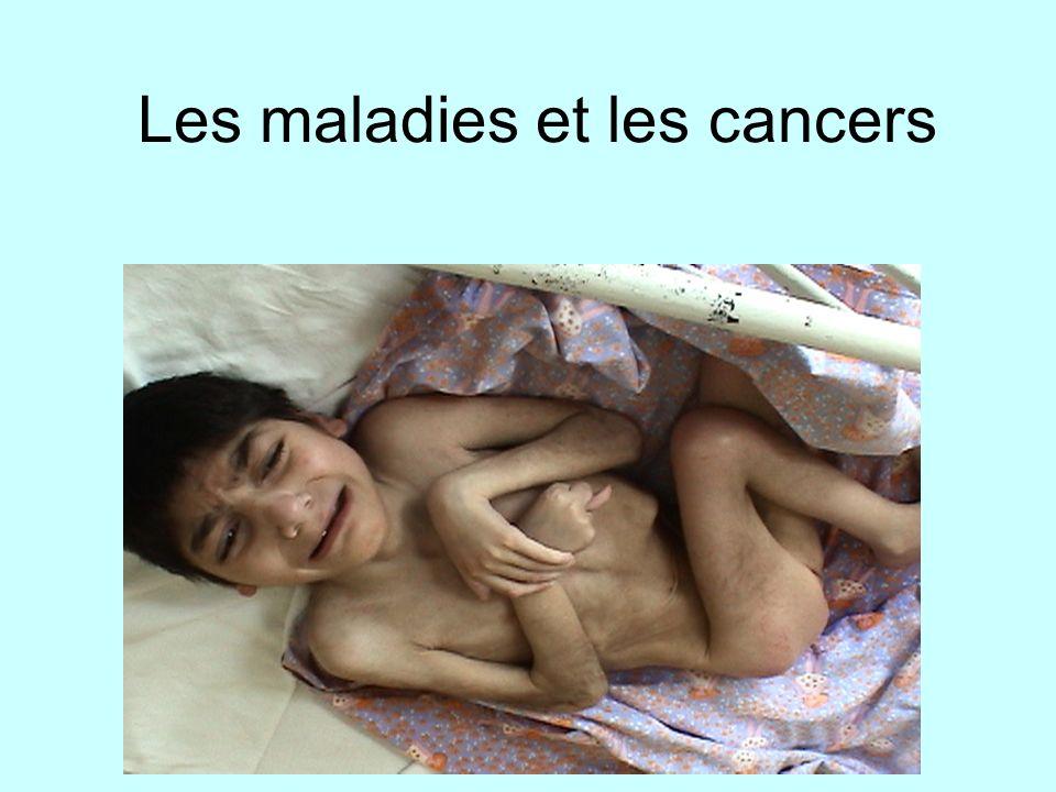 Les maladies et les cancers